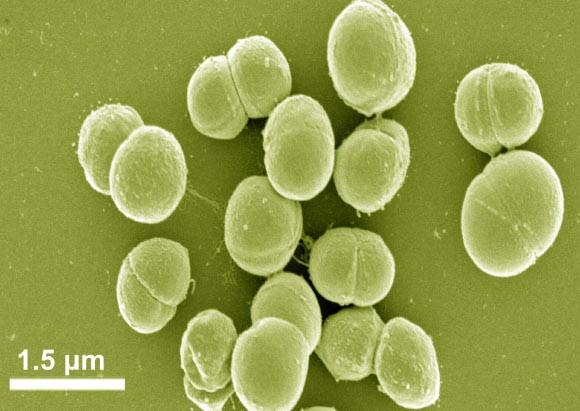 La bacteria Planococcus halocryophilus se adapta a condiciones de baja temperatura y alta salinidad, y por tanto puede sobrevivir y prosperar en entornos extremos.